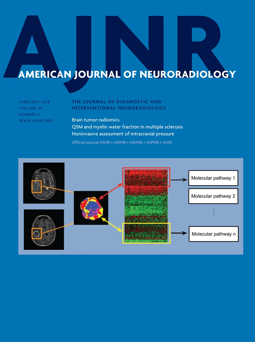 Imaging Approaches Expand View Into >> Radiomics In Brain Tumor Image Assessment Quantitative Feature