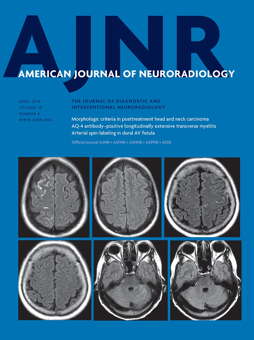 Evaluation of Leptomeningeal Contrast Enhancement Using Pre-and