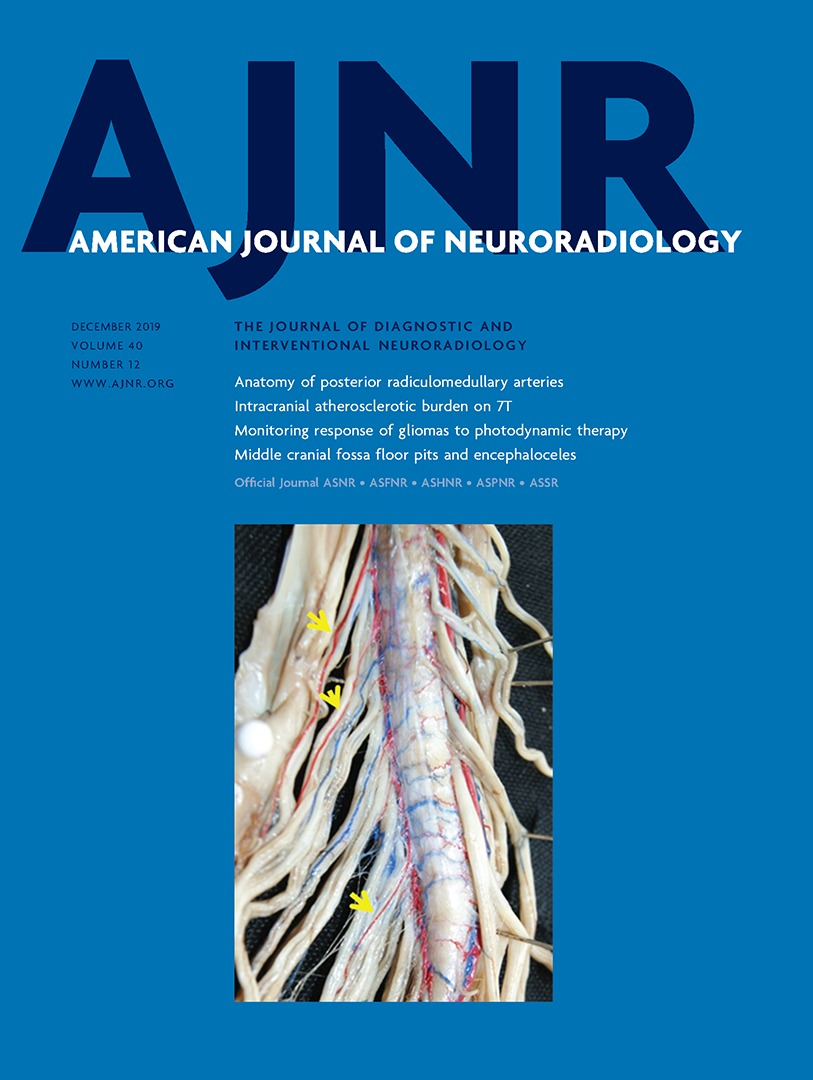 Anatomy Of The Great Posterior Radiculomedullary Artery American Journal Of Neuroradiology A myelomeningocele is an obvious open malformation. american journal of neuroradiology