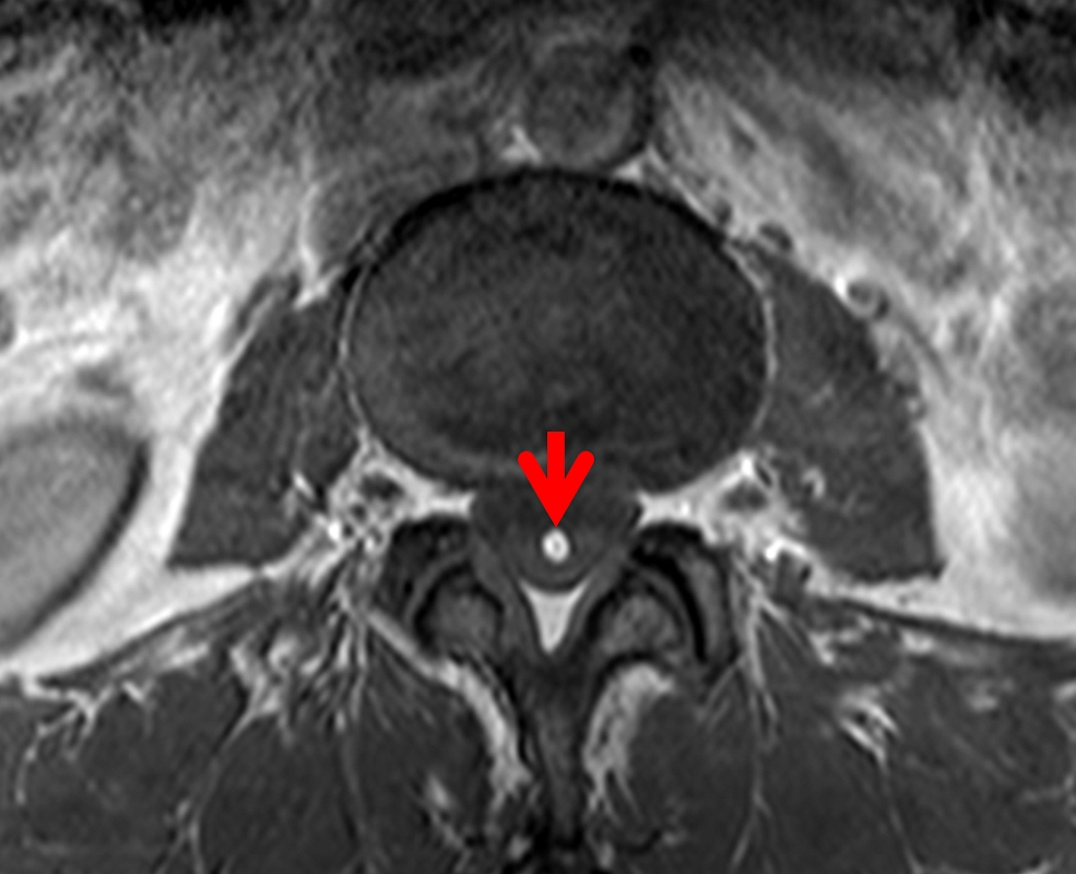 Classic Case American Journal Of Neuroradiology (figure 4) typically presents with thickening of the nerve roots and smooth and/or nodular leptomeningeal enhancing filum terminale lipomas can be incidental or symptomatic. classic case american journal of neuroradiology