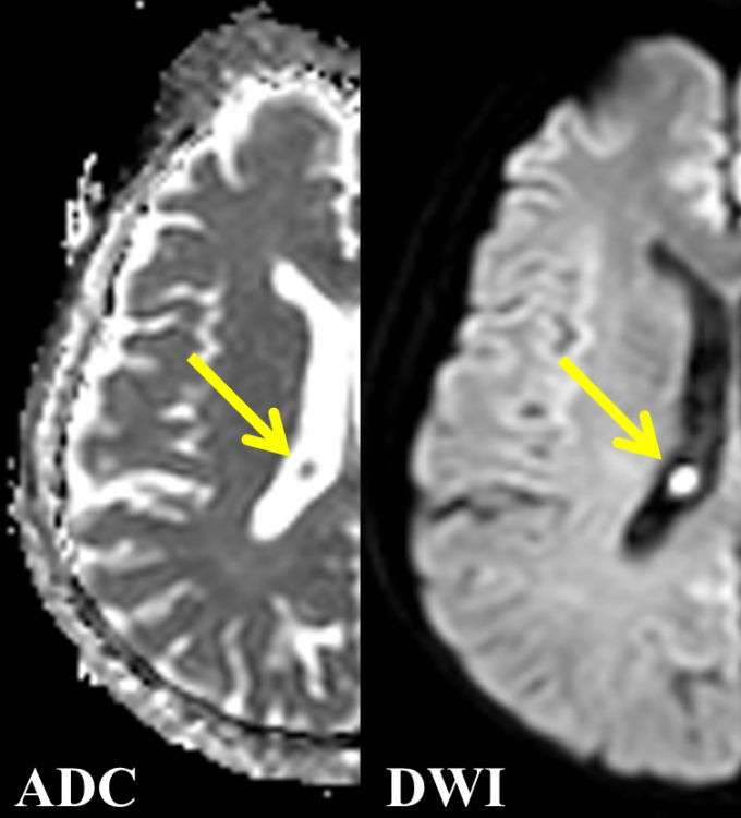 Classic Case | American Journal of Neuroradiology