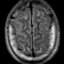Case of the Week Archive   American Journal of Neuroradiology