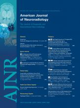 American Journal of Neuroradiology: 32 (11)