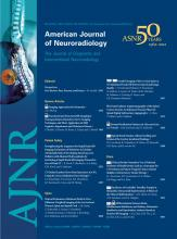 American Journal of Neuroradiology: 33 (10)