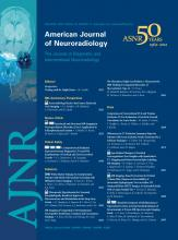 American Journal of Neuroradiology: 33 (11)