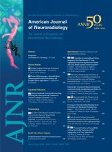 American Journal of Neuroradiology: 33 (4)