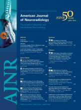 American Journal of Neuroradiology: 33 (5)