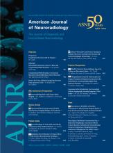 American Journal of Neuroradiology: 33 (6)