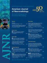 American Journal of Neuroradiology: 33 (7)