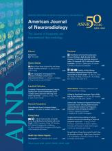 American Journal of Neuroradiology: 33 (8)