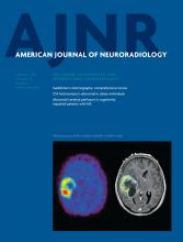 American Journal of Neuroradiology: 34 (1)