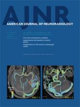 American Journal of Neuroradiology: 34 (10)