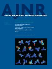 American Journal of Neuroradiology: 34 (11)