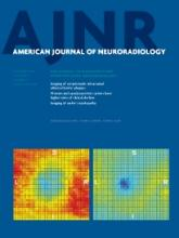 American Journal of Neuroradiology: 34 (12)
