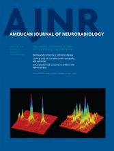 American Journal of Neuroradiology: 34 (2)