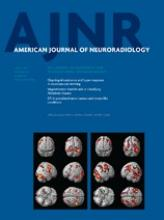 American Journal of Neuroradiology: 34 (4)