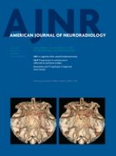 American Journal of Neuroradiology: 34 (5)