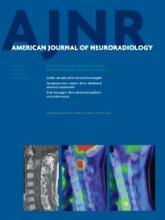 American Journal of Neuroradiology: 34 (6)