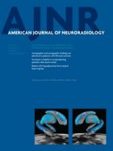 American Journal of Neuroradiology: 34 (7)