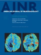 American Journal of Neuroradiology: 34 (8)