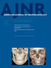 American Journal of Neuroradiology: 34 (9)