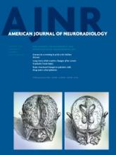 American Journal of Neuroradiology: 35 (1)