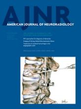 American Journal of Neuroradiology: 35 (11)