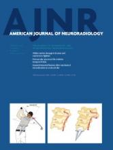 American Journal of Neuroradiology: 35 (2)