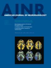 American Journal of Neuroradiology: 35 (5)