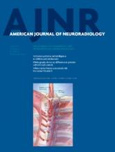 American Journal of Neuroradiology: 35 (6)