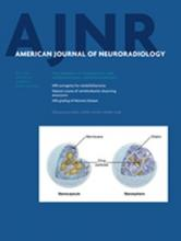 American Journal of Neuroradiology: 35 (7)