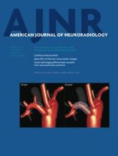 American Journal of Neuroradiology: 35 (8)