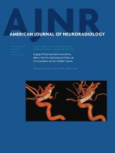 American Journal of Neuroradiology: 35 (9)