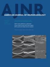 American Journal of Neuroradiology: 36 (1)