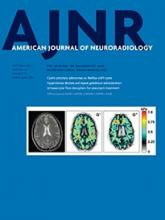 American Journal of Neuroradiology: 36 (10)