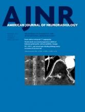 American Journal of Neuroradiology: 36 (12)