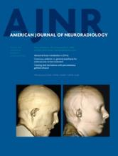American Journal of Neuroradiology: 36 (3)