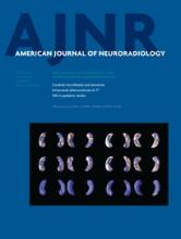 American Journal of Neuroradiology: 36 (4)