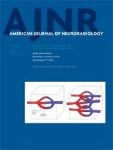 American Journal of Neuroradiology: 36 (5)