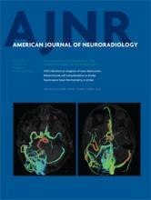 American Journal of Neuroradiology: 36 (6)