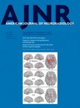 American Journal of Neuroradiology: 36 (7)