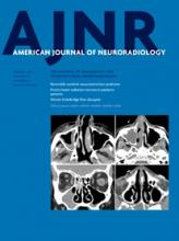 American Journal of Neuroradiology: 36 (8)