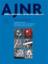 American Journal of Neuroradiology: 37 (1)