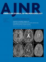 American Journal of Neuroradiology: 37 (10)