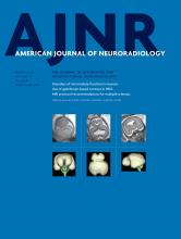 American Journal of Neuroradiology: 37 (3)