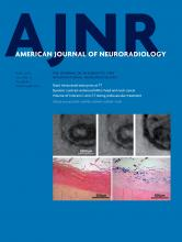 American Journal of Neuroradiology: 37 (4)