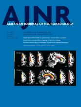 American Journal of Neuroradiology: 37 (5)