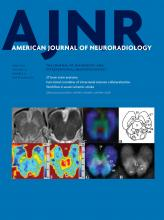 American Journal of Neuroradiology: 37 (6)