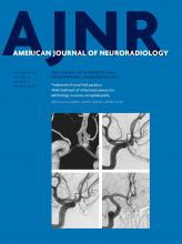 American Journal of Neuroradiology: 37 (9)