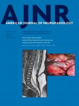 American Journal of Neuroradiology: 38 (1)
